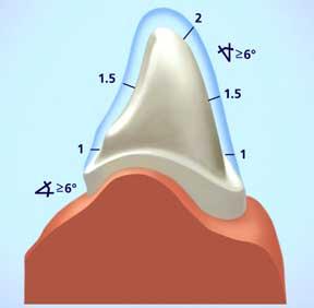 Культя зуба под штампованную коронку 4