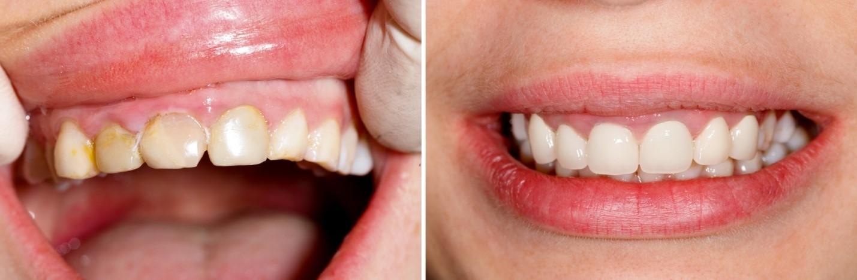 У ребенка растет зуб желтого цвета